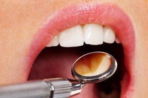 Dental Cleanings and Examinations