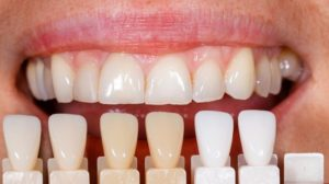 hicksville Dental Veneers